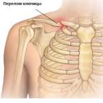Лечение перелома ключицы хирургическим путем