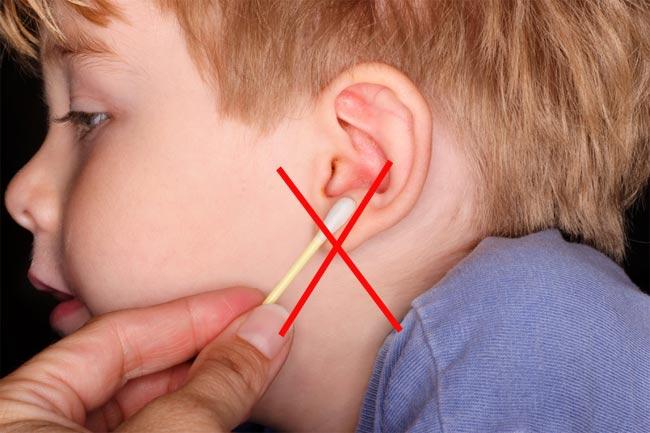 Как самому почистить пробки в ушах Страж-Инвест